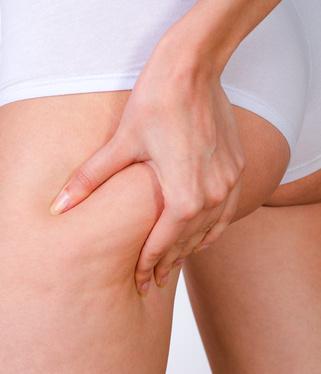 Cellulite skin